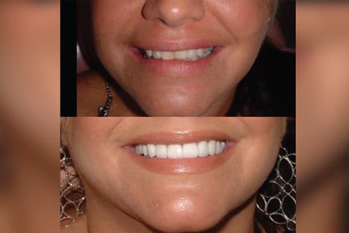 Smile Design Consultation and Expectations